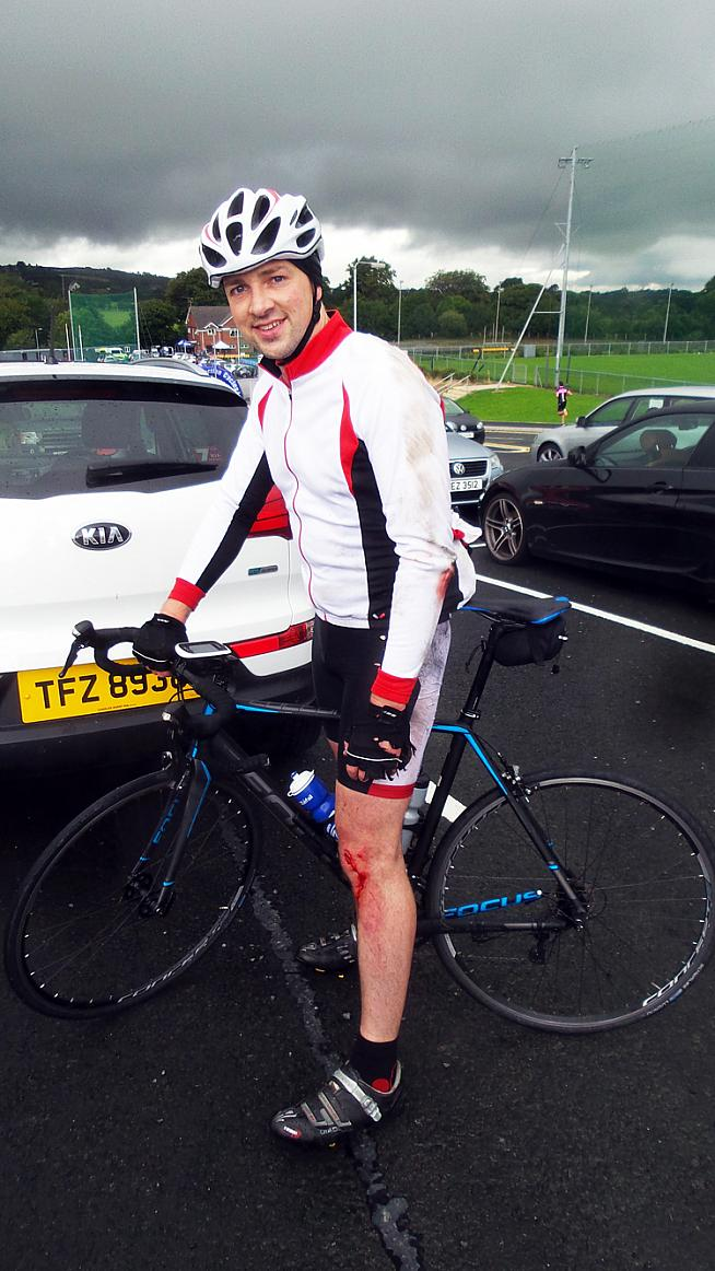 Slippy roads claimed one victim - although Aaron was more bothered about his ripped shorts than his knee!